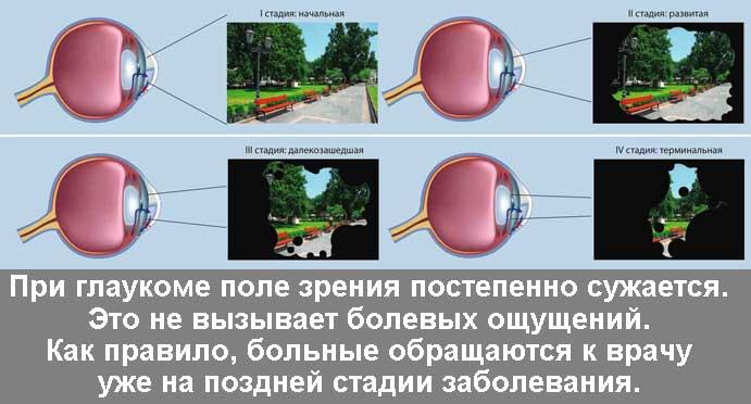 Глаукома в Екатеринбурге в салонах оптики Зеркальный