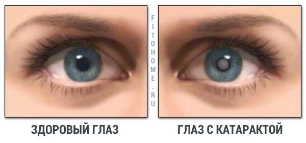 Катаракта в Екатеринбурге в салонах оптики Зеркальный