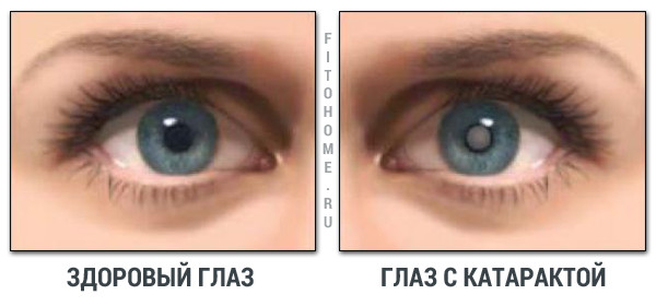 "Катаракта глаз: симптомы, профилактика, лечение - ""Рита Спарк ..."