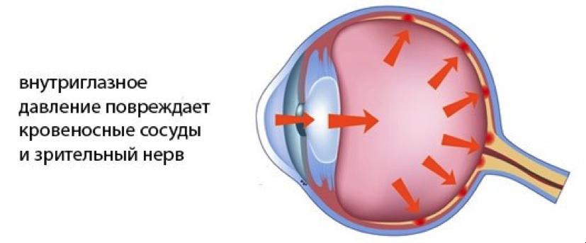 Измерение внутриглазного давления – процедура необходимая!!! в Екатеринбурге в салонах оптики Зеркальный