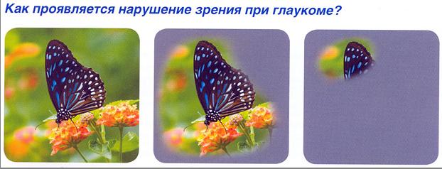 Профилактика глаукомы в Екатеринбурге в салонах оптики Зеркальный